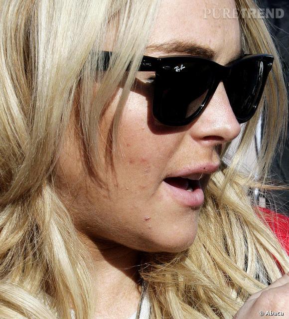 Lindsay Lohan aussi a des problèmes de peau.
