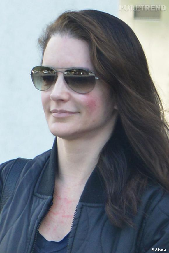 Kristin Davis souffre de vilaines rougeurs.