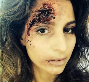 Laury Thilleman : son visage tuméfié inquiète ses fans