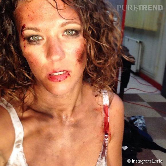 """Lorie dévoile son visage tuméfié sur Instagram lors du tournage du court-métrage """"Chienne de vie"""" de Cyril Ferment."""