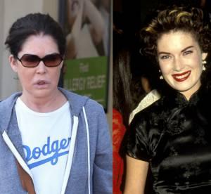 Lara Flynn Boyle, la star de Twin Peaks ravagée par la chirurgie esthétique