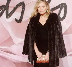 Kate Moss : la top abuserait-elle de la chirurgie esthétique ?