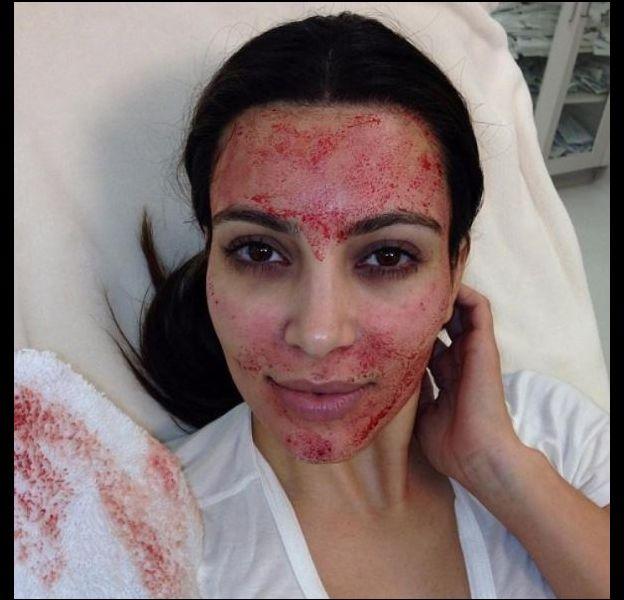 Kim Kardashian en pleine séance de vampire lifting.