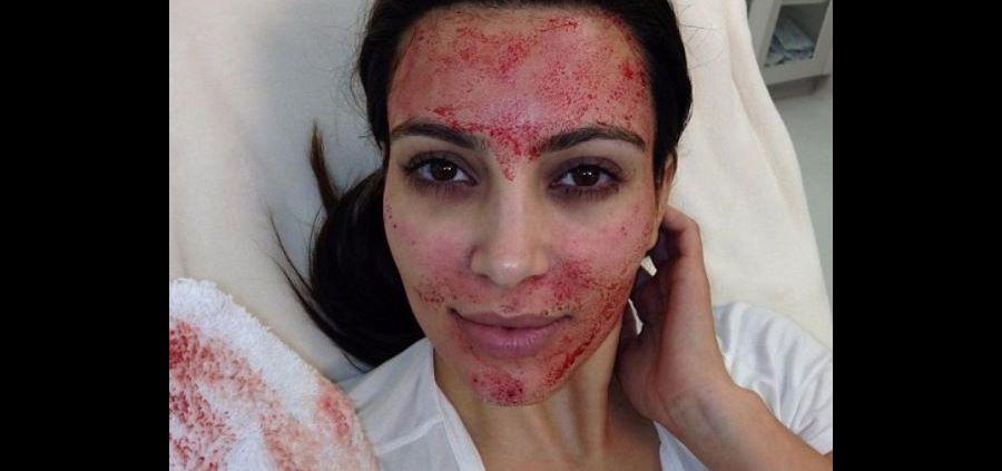 Vampire lift : Après Kim Kardashian, elles s'y mettent toutes !