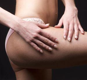 Cellulite : 4 bons réflexes pour dégommer la peau d'orange