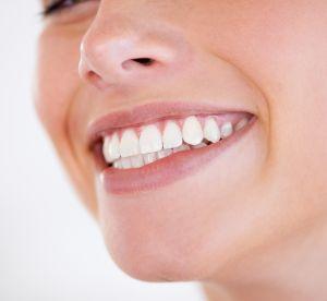 Ces idées reçues sur le blanchiment des dents