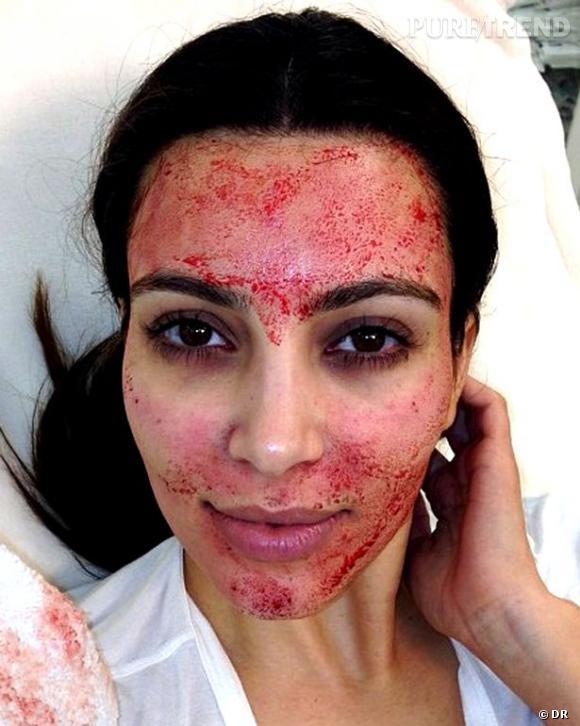 Kim Kardashian, prête à tout pour paraitre plus jeune à seulement 32 ans.